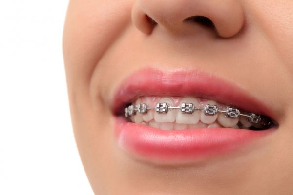 What to Consider When Heading to a Dentist