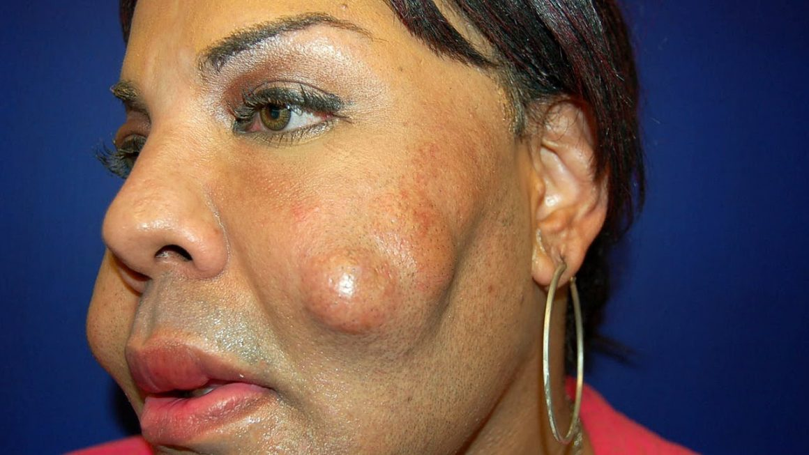 Plastic Surgery Mistakes Everyone Should Avoid